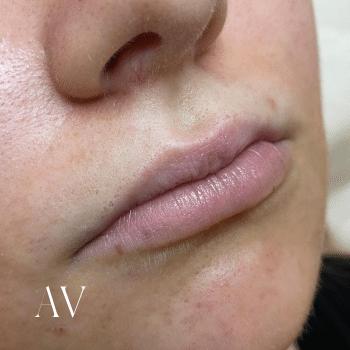 before lip filler