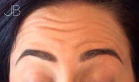 botox-bristol-1-before
