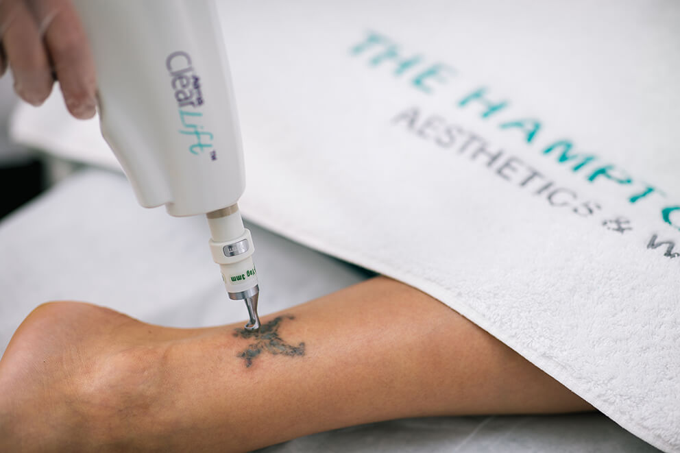 tattooremoval (1)