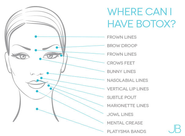 where-can-i-have-botox-bristol