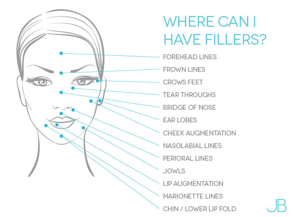 where-can-i-have-fillers-bristol